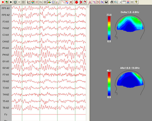 Event: Creating Functional EEG Reports with the HBImed Report Generator
